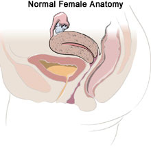 Endometriosis Adenomyosis