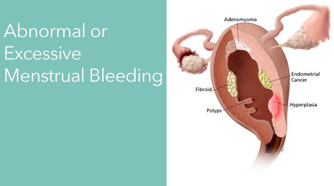 Abnormal Or Excessive Menstrual Bleeding