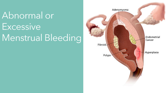 Abnormal Or Excessive Menstrual Bleeding