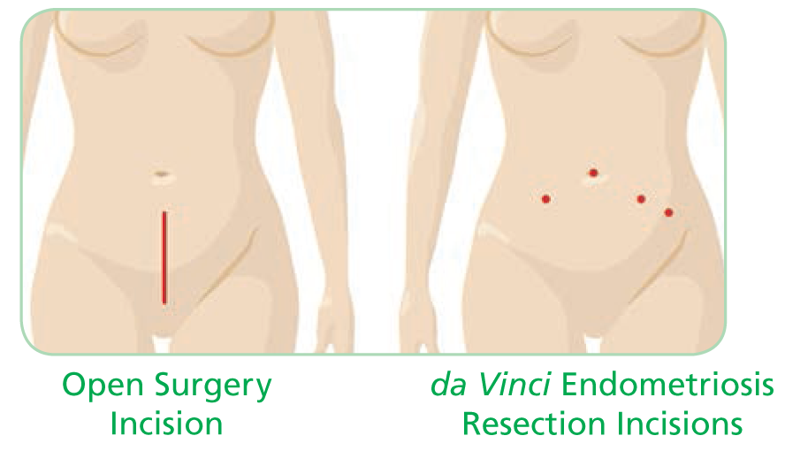 da Vinci Endometriosis Resection