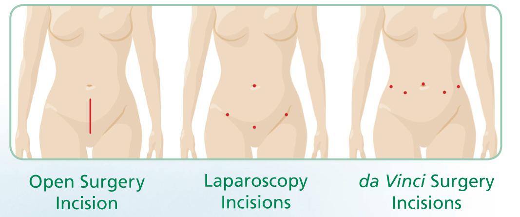 sacrocolpopexy pelvic